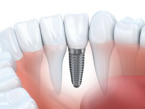 Dental implant next to normal teeth