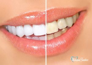 image showing teeth before and after whitening