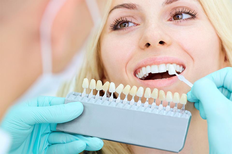 Dental Crown Colour