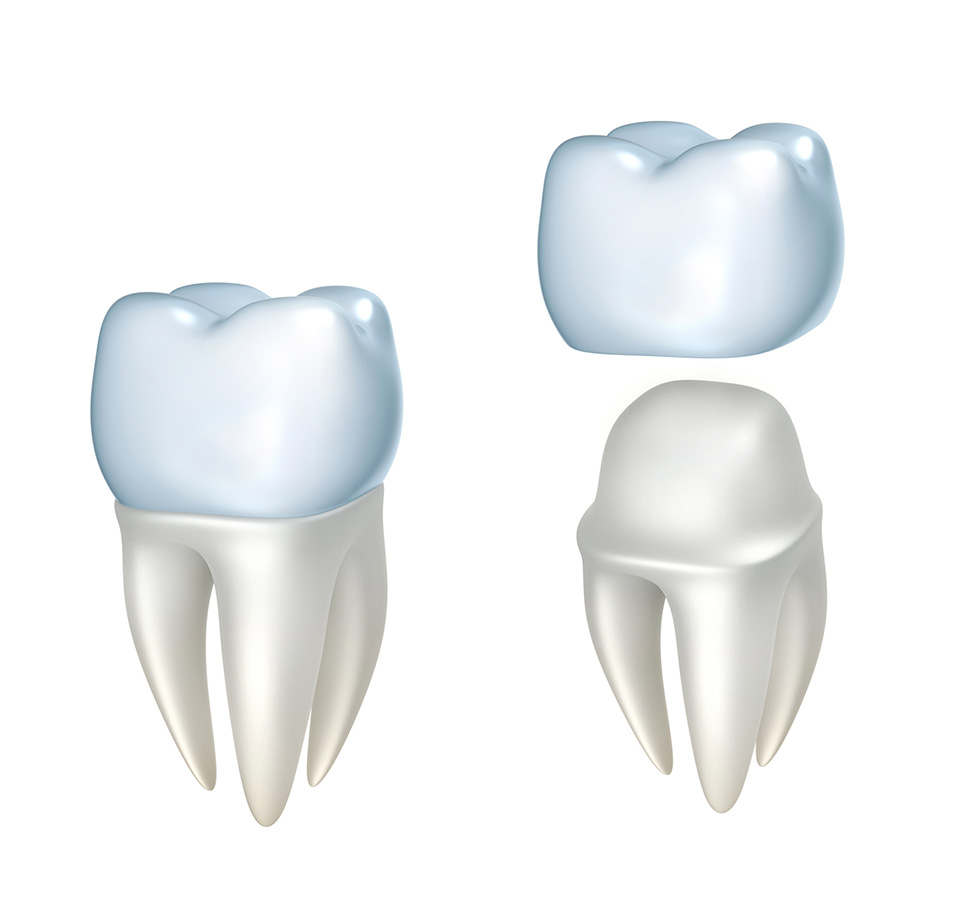 Dental Crowns at Unique Smiles
