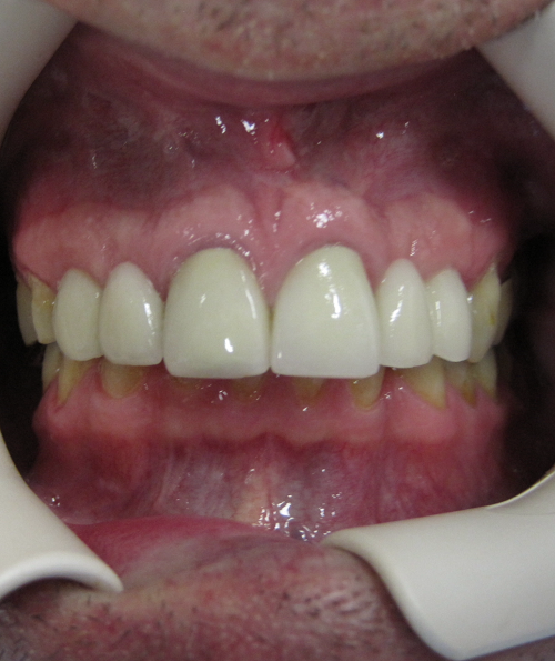Implants and Crowns After Photo