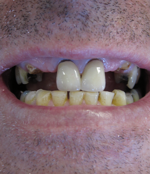 Implants and Crowns Before Photo