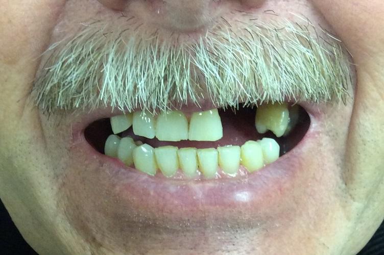 Dental Implant Bridge Before Photo