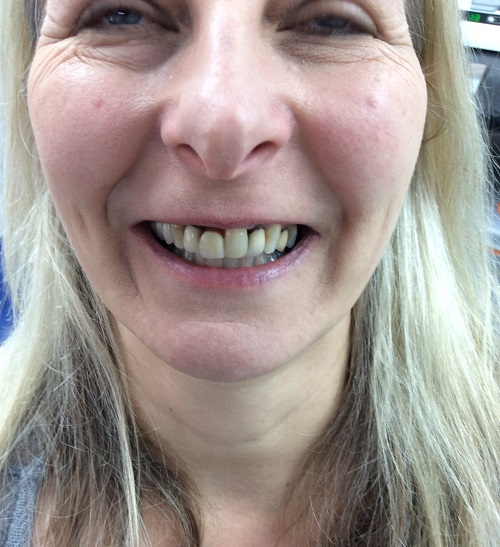 Crowns and Tooth Whitening Before Photo