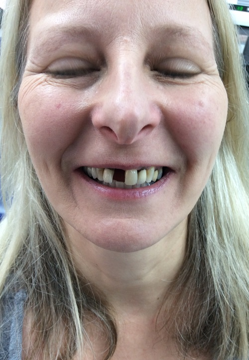 Dental Implant and Tooth Whitening Before Photo