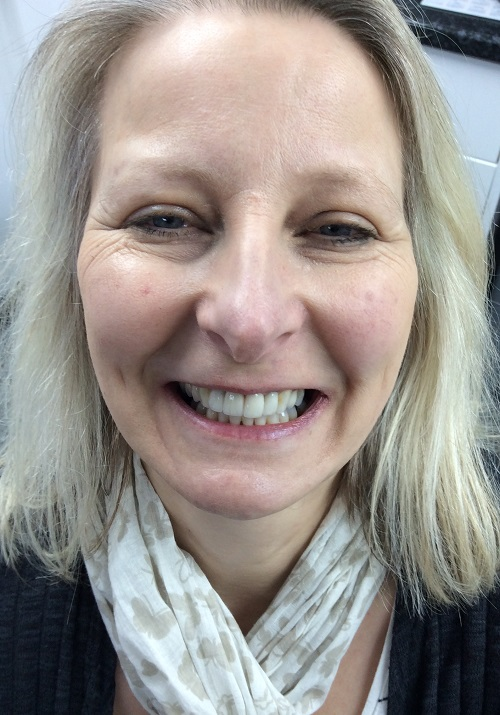 Dental Implant and Tooth Whitening After Photo