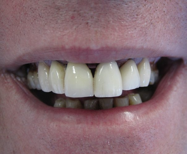 Zirconia Crowns Before Photo