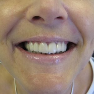 After treatment at Unique Smiles.