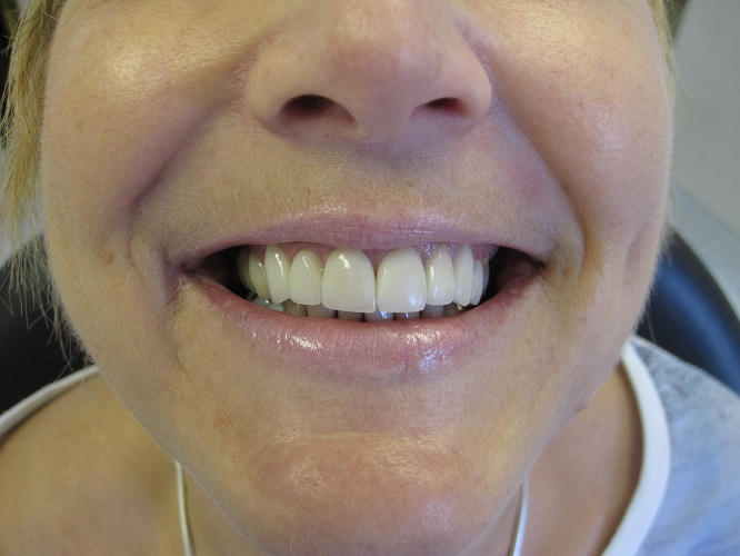 Replacing Crowns After Photo