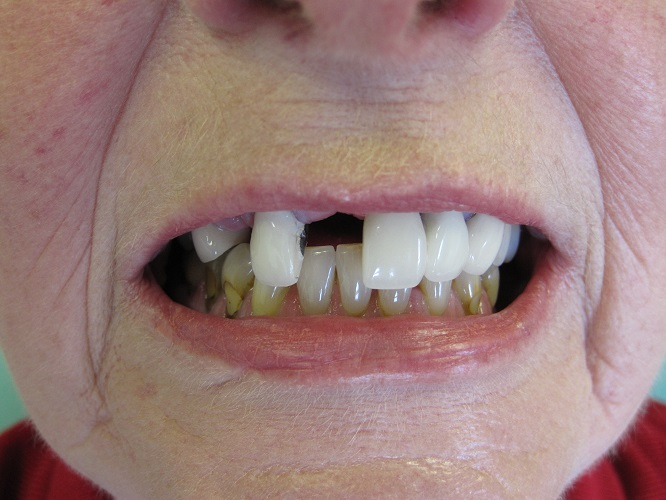 Dental Implant Before Photo