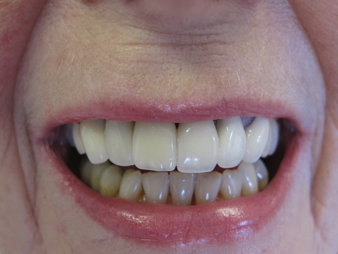 Dental Implant After Photo