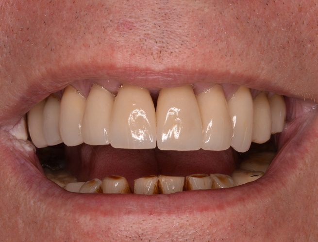 Zirconia Crowns After Photo
